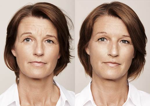 Facial Enhancements Without Surgery